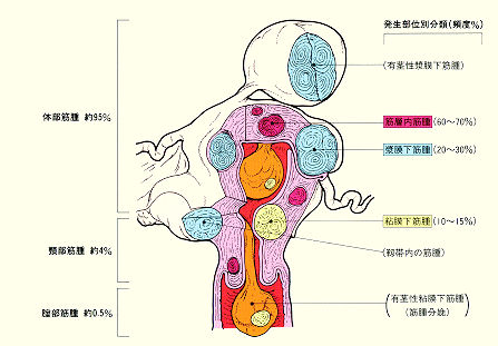 img016(筋腫).jpg